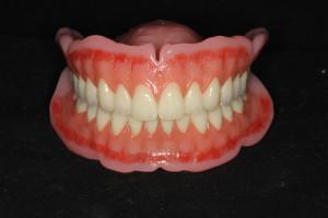 総入れ歯正面