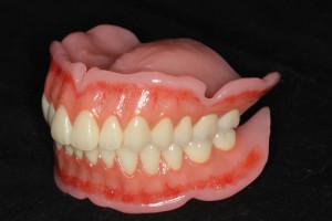 総入れ歯左サイド