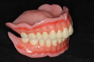 総入れ歯右サイド