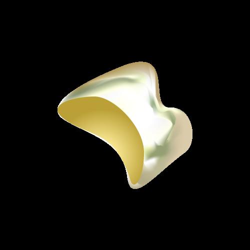 ゴールドクラウン or インレー