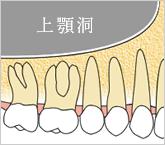 正常な上顎洞